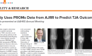 UF Ortho Featured in AAOS Now: Study Uses PROMs Data from AJRR to Predict TJA Outcomes